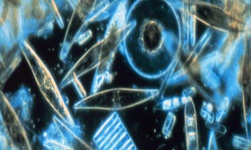 Tảo biến đổi gene tiêu diệt 90 % tế bào ung thư